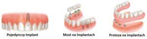 tanie implanty